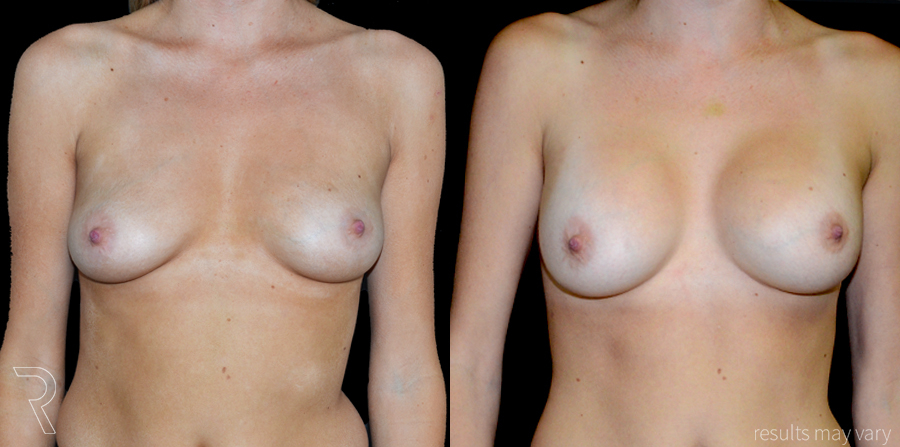 G_Breast_Augmentation_052617_01