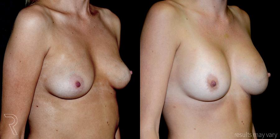 G_Breast_Augmentation_052617_04