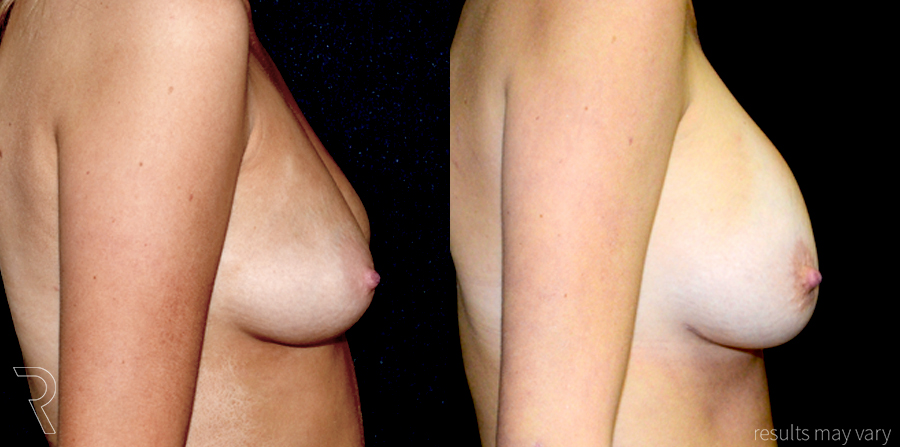 G_Breast_Augmentation_052617_05