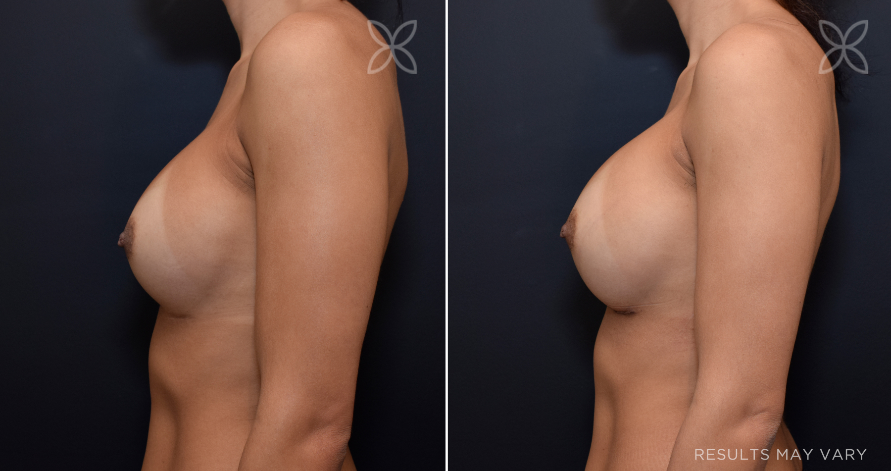 G_breast-augmentation_implant-exchange_091819_05