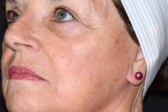 Post Treatment (3 months) | Facelift, Temporal Brow lift, and Lower Blepharoplasty