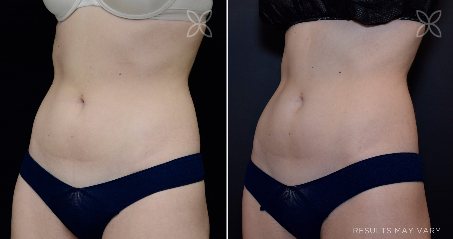 EMSCULPT treatment of the abdomen.