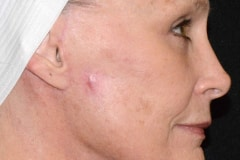 Post Treatment (4 months)   Facelift, Neck Lift, and Lower Blepharoplasty